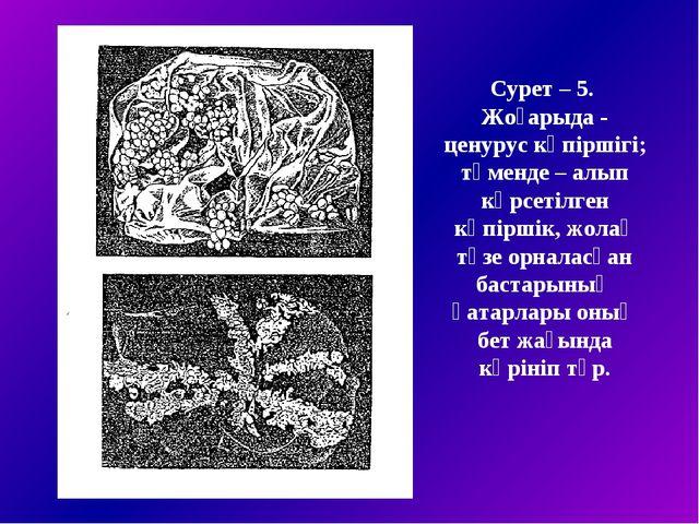 Сурет – 5. Жоғарыда - ценурус көпіршігі; төменде – алып көрсетілген көпіршік,...