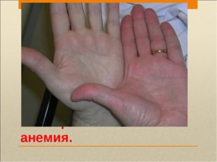 малокровие или анемия.