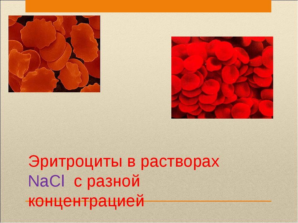 Эритроциты в растворах NaCl с разной концентрацией