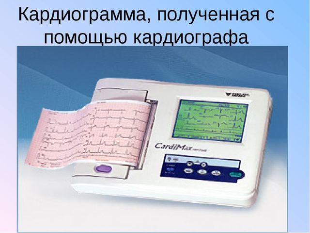 Кардиограмма, полученная с помощью кардиографа