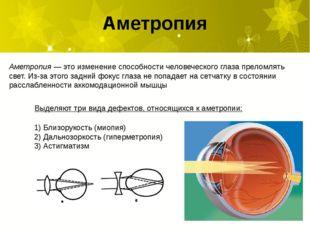Аметропия Аметропия— это изменение способности человеческого глаза преломлят