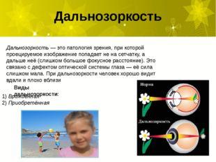 Дальнозоркость— это патология зрения, при которой проецируемое изображение п