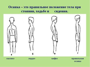 Осанка – это правильное положение тела при стоянии, ходьбе и сидении. правиль
