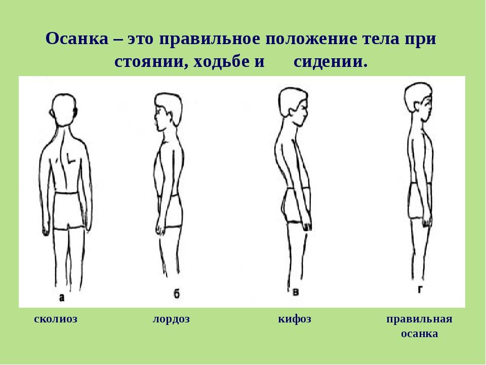 Осанка – это правильное положение тела при стоянии, ходьбе и сидении. правиль...