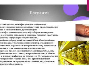 Ботулизм Ботули́зм — тяжёлое токсикоинфекционноезаболевание, характеризующее