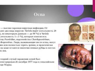 Оспа О́спа—высоко заразнаявируснаяинфекция. Её вызывают два вида вирусов