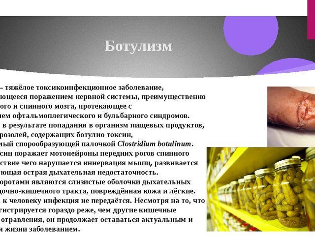 Ботулизм Ботули́зм — тяжёлое токсикоинфекционноезаболевание, характеризующее...
