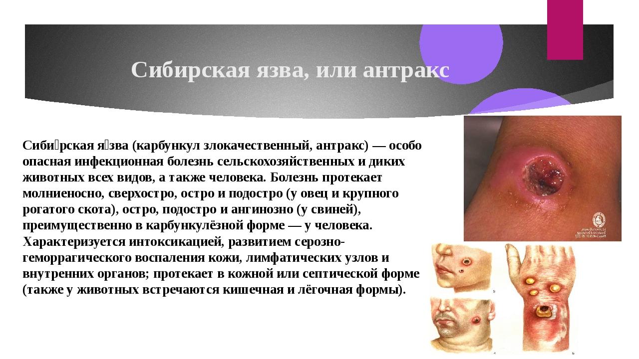 Сибирская язва, или антракс Сиби́рская я́зва(карбункулзлокачественный, антр...