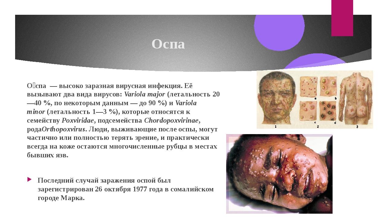 Оспа О́спа—высоко заразнаявируснаяинфекция. Её вызывают два вида вирусов...