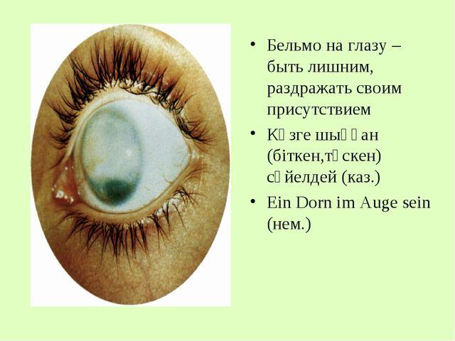 Бельмо на глазу – быть лишним, раздражать своим присутствием Көзге шыққан (бі...