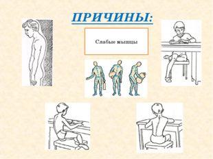 ПРИЧИНЫ: Слабые мышцы