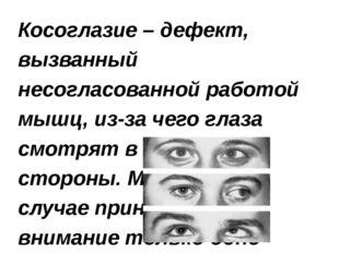 Косоглазие – дефект, вызванный несогласованной работой мышц, из-за чего глаза