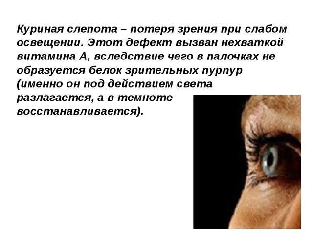 Куриная слепота – потеря зрения при слабом освещении. Этот дефект вызван нехв...