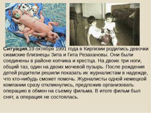 Ситуация.19 октября 1991 года в Киргизии родились девочки сиамские близнецы