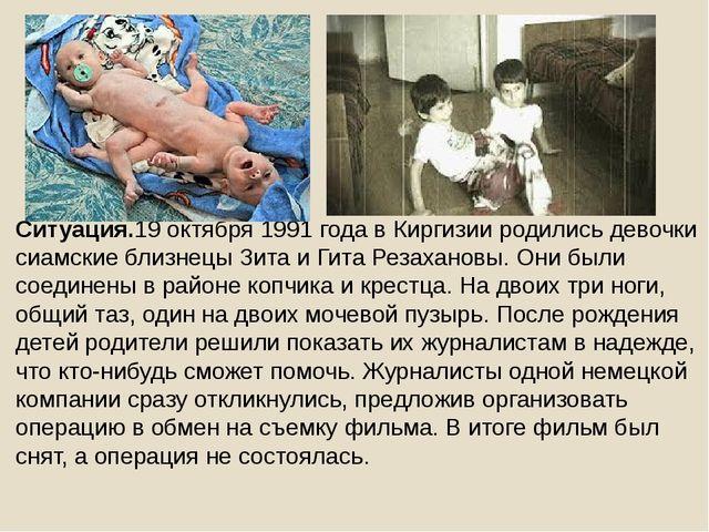 Ситуация.19 октября 1991 года в Киргизии родились девочки сиамские близнецы...