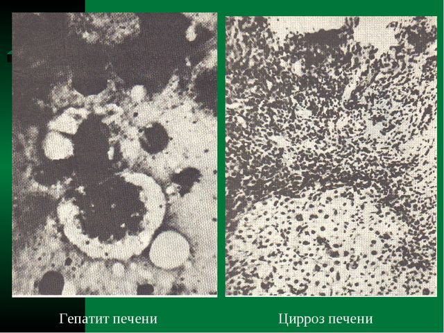 Гепатит печени Цирроз печени