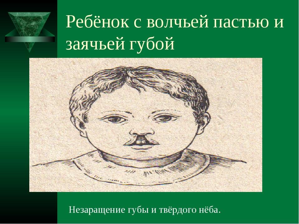 Ребёнок с волчьей пастью и заячьей губой Незаращение губы и твёрдого нёба.