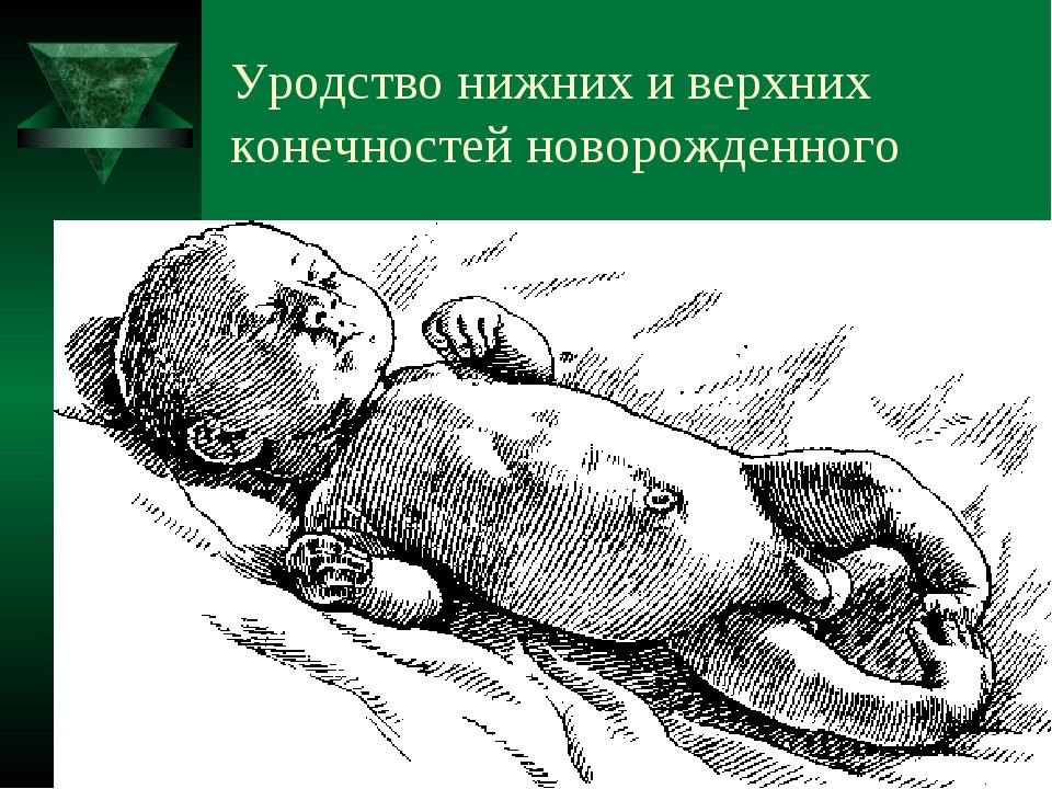 Уродство нижних и верхних конечностей новорожденного