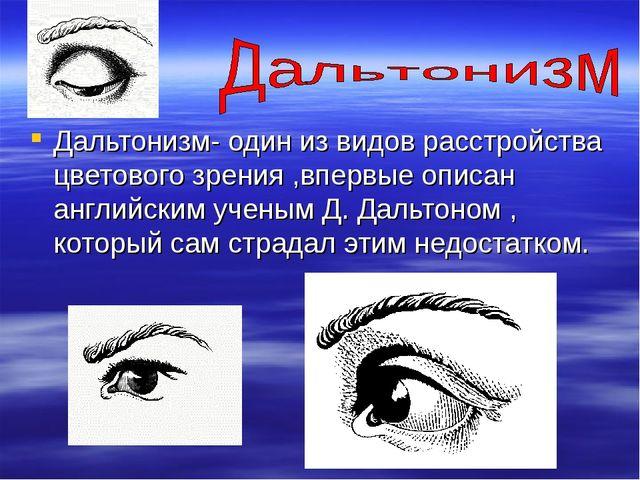 Дальтонизм- один из видов расстройства цветового зрения ,впервые описан англи...