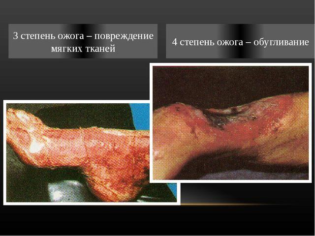 3 степень ожога – повреждение мягких тканей 4 степень ожога – обугливание