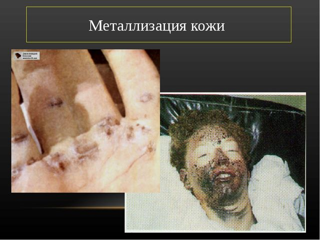 Металлизация кожи