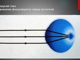 Близорукий глаз. Изображение фокусируется перед сетчаткой