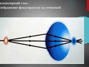 Дальнозоркий глаз. Изображение фокусируется за сетчаткой