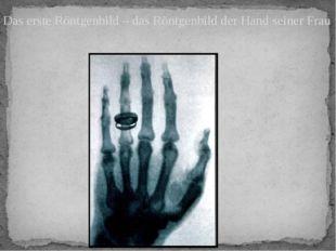 Das erste Röntgenbild – das Röntgenbild der Hand seiner Frau