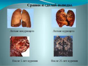 После 5 лет курения После 25 лет курения Сравни и сделай выводы. Легкие неку