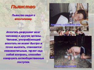 Пьянство Пьянство ведет к алкоголизму. Алкоголь разрушает мозг человека и дру