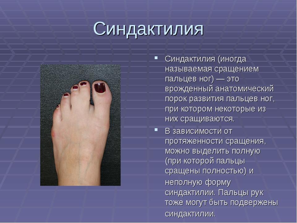 Синдактилия Синдактилия (иногда называемая сращением пальцев ног) — это врожд...