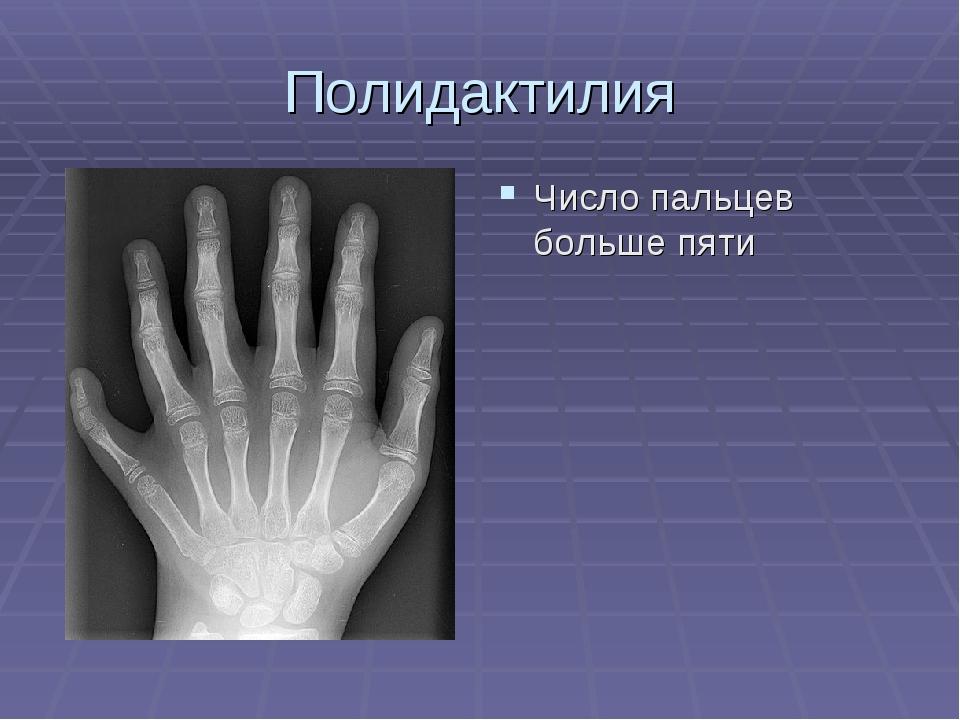 Полидактилия Число пальцев больше пяти