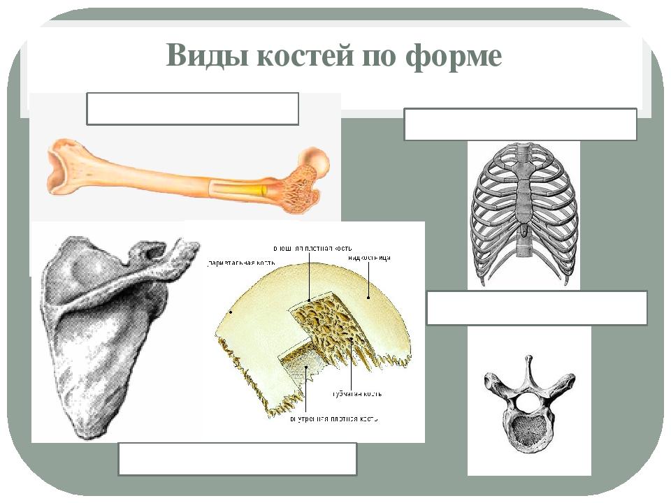 Виды костей по форме Губчатые кости Смешанные кости Трубчатые кости Плоские к...