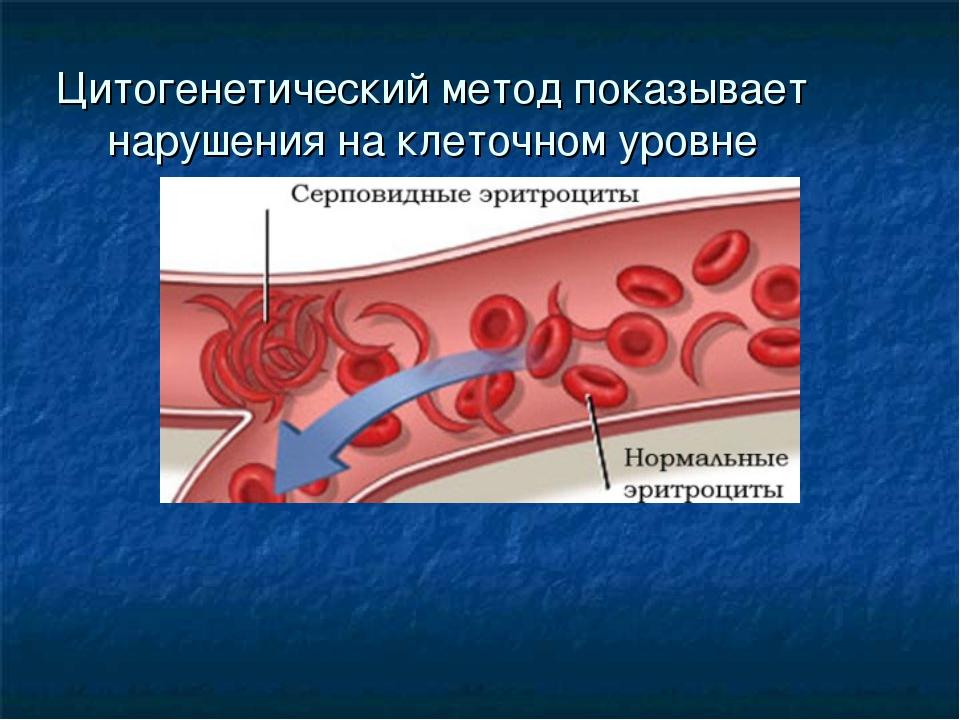 Цитогенетический метод показывает нарушения на клеточном уровне