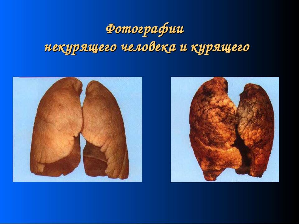 Фотографии некурящего человека и курящего