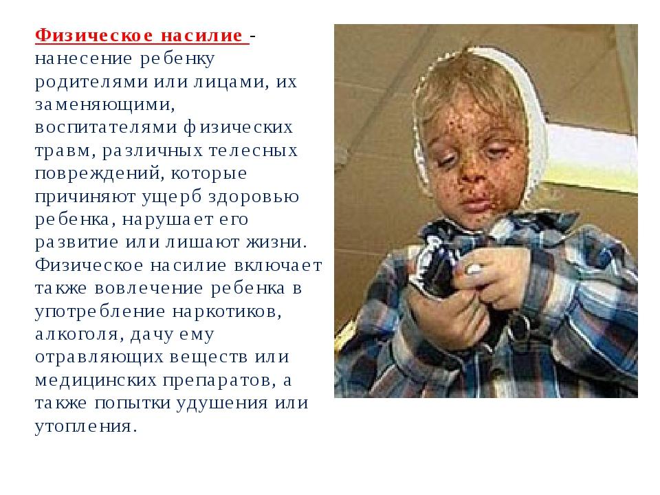 Физическое насилие - нанесение ребенку родителями или лицами, их заменяющими,...