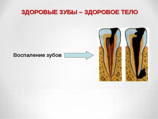 ЗДОРОВЫЕ ЗУБЫ – ЗДОРОВОЕ ТЕЛО Воспаление зубов