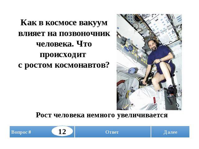 Далее Как в космосе вакуум влияет на позвоночник человека. Что происходит с р...
