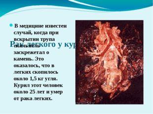 Рак легкого у курящего человека В медицине известен случай, когда при вскрыт