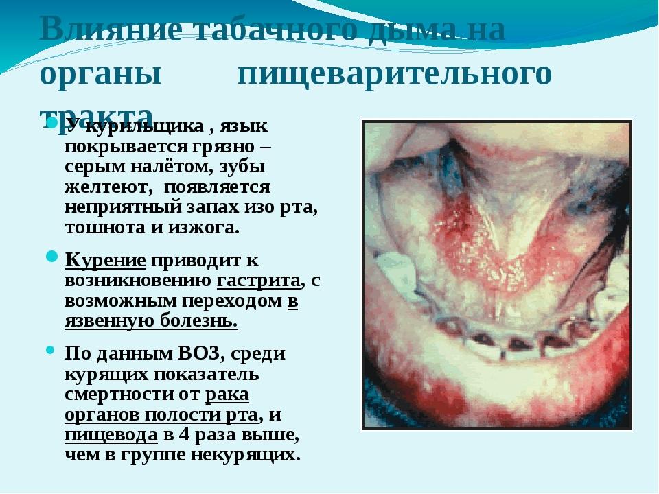 Влияние табачного дыма на органы  пищеварительного тракта У курильщика , яз...