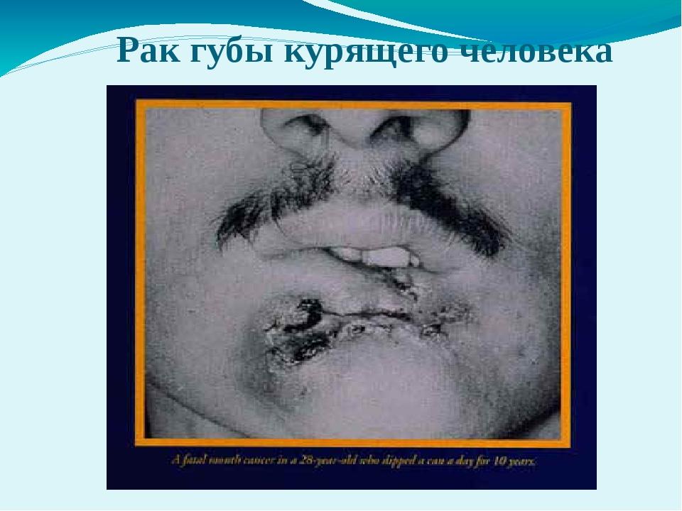 Рак губы курящего человека
