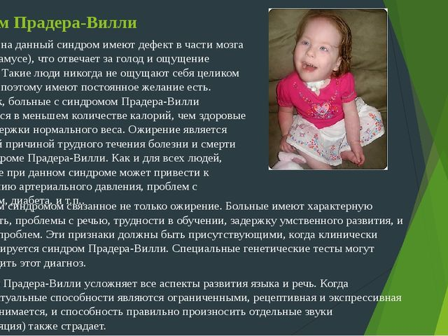 prader willi syndrome About prader-willi syndrome: prader-willi syndrome is a rare genetic disorder that occurs due to a defect in chromosome 15 it is characterised small hands and feet, small stature, hypotonia, intellectual disability and insatiable hunger which may lead to early onset obesity and extreme obesity.