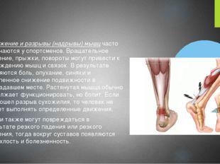 Растяжение и разрывы (надрывы) мышц часто встречаются у спортсменов. Вращател