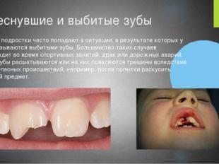 Треснувшие и выбитые зубы Многие подростки часто попадают в ситуации, в резул
