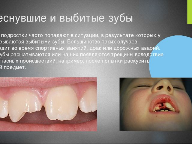 Треснувшие и выбитые зубы Многие подростки часто попадают в ситуации, в резул...