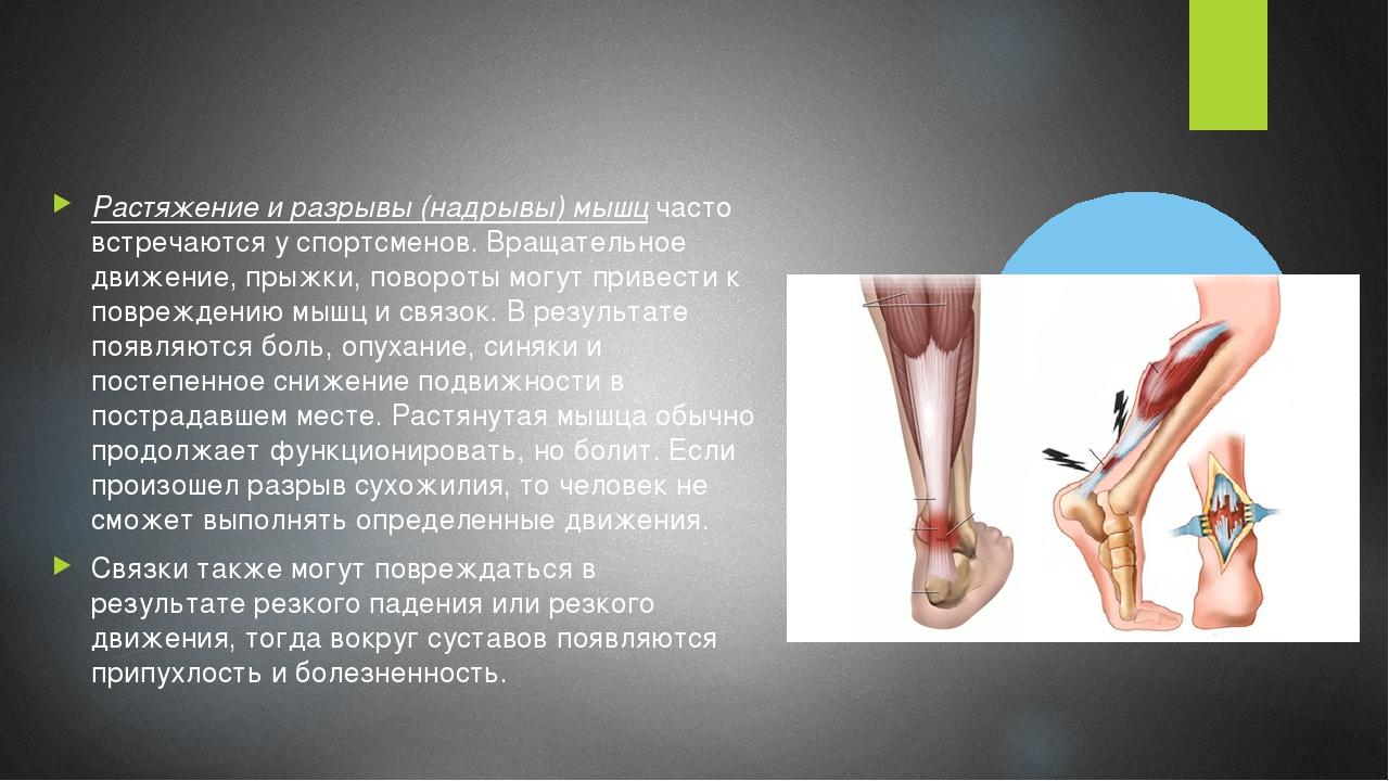 Растяжение и разрывы (надрывы) мышц часто встречаются у спортсменов. Вращател...