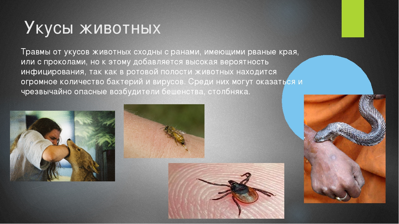 Укусы животных Травмы от укусов животных сходны с ранами, имеющими рваные кра...
