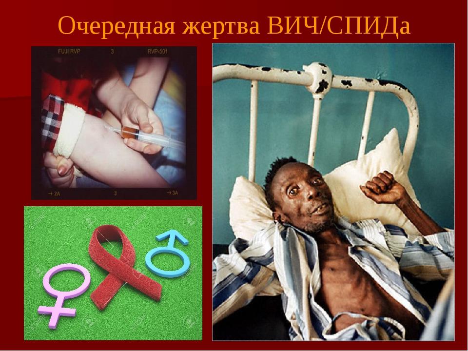 Очередная жертва ВИЧ/СПИДа