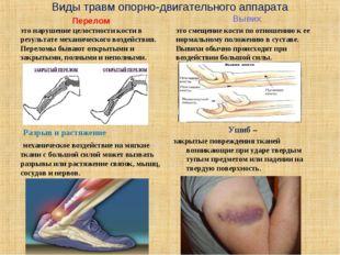 Виды травм опорно-двигательного аппарата Перелом это нарушение целостности ко
