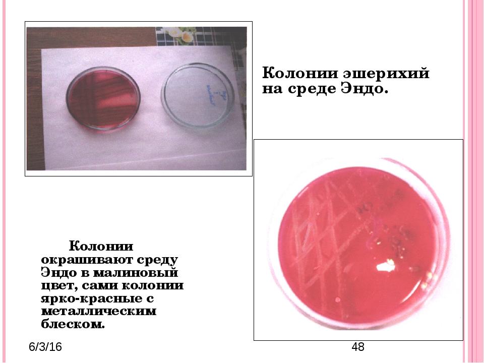 Колонии окрашивают среду Эндо в малиновый цвет, сами колонии ярко-красные...